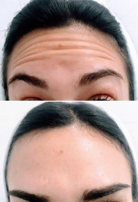 Tratamiento-Botox-Clinic-Mallorca-MED