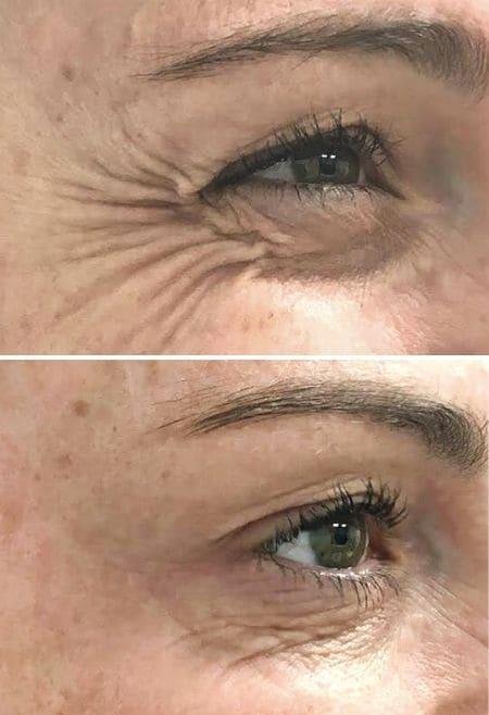 Tratamiento-Botox-patas-de-gallo-Clinic-Mallorca-MED