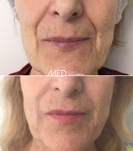 Ácido-Hialurónico-Surcos-Nasogenianos-Clinic-Mallorca-MED