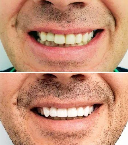 Carillas-Dentales-Estética-Dental-Clinic-Mallorca-MED
